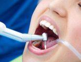 مراقبت از دندانهای پر شده