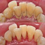 آیا جرم گیری برای دندان ضرر دارد