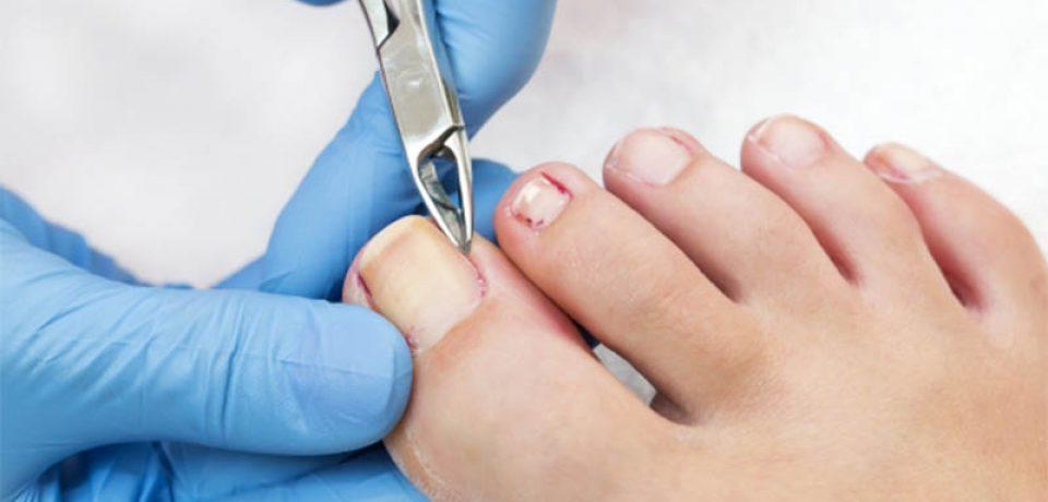 فرو رفتن ناخن در گوشت پا